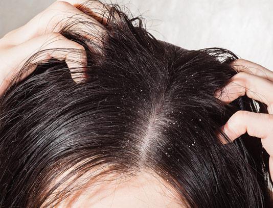 عکس با کیفیت شوره زدن موهای سر