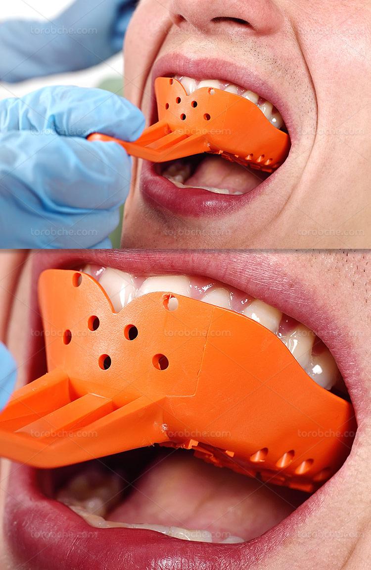 عکس قالبگیری دندان